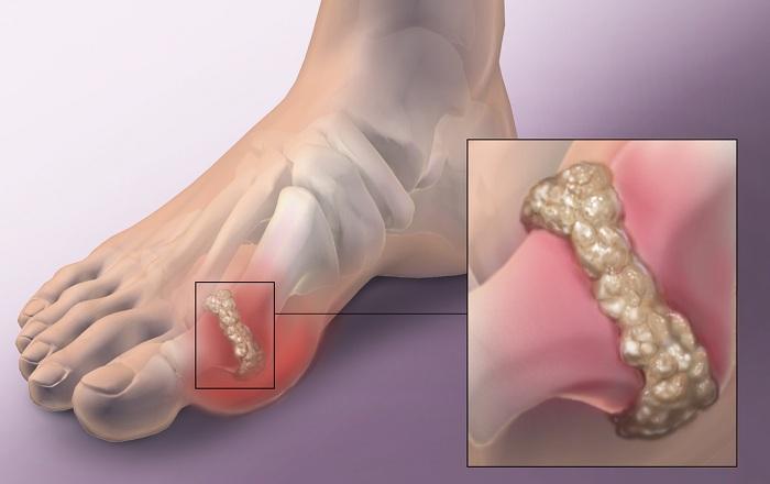 подагра и артрит