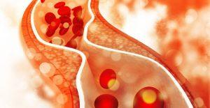 Каква е връзката между подаграта и холестерола?